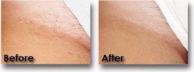 Alexandrite Laser Hair Removal - Derma Laser Clinics