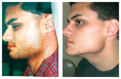 Before After Laser Hair Removal Pictures Laser Hair